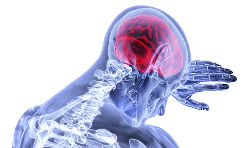 中风 脑部 症状 脑梗塞 脑梗死-康兴医疗器械官网